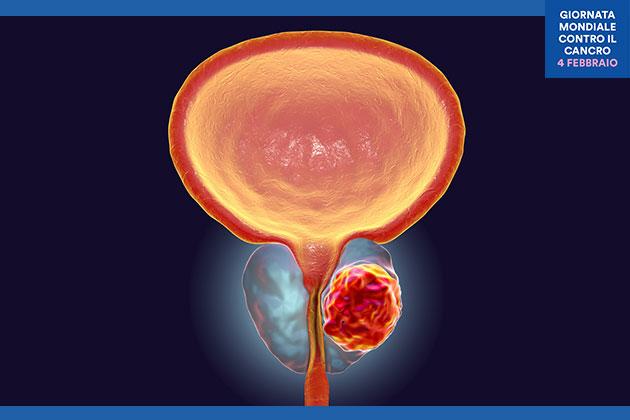 dispositivo medico su la prostata